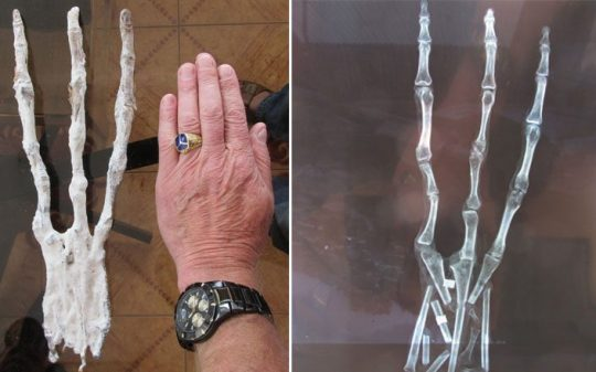 X-Ray Analysis Confirms This Could Really Be a Mummified Alien Hand